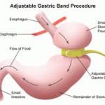 Bariatrische chirurgie is geen oplossing voor psychologische oorzaken van overgewicht